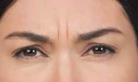 Botox Results Before And After Of Woman's Forehead