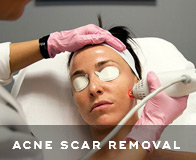 Santa Monica Acne Scar Treatment