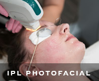 San Francisco IPL Photo Facials
