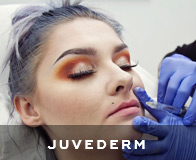 San Francisco Juvederm