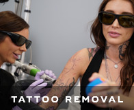 Novato Laser Tattoo Removal