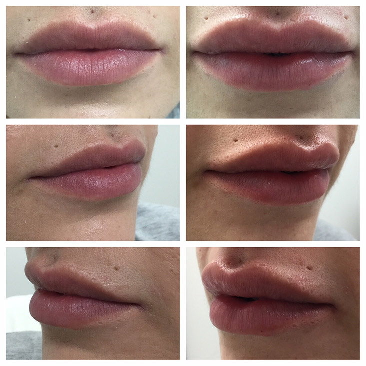 Female Patient 2.3ml Juvederm