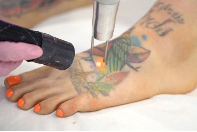 Full color tattoo removal on a foot