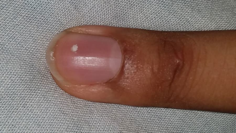 White spots on fingernail
