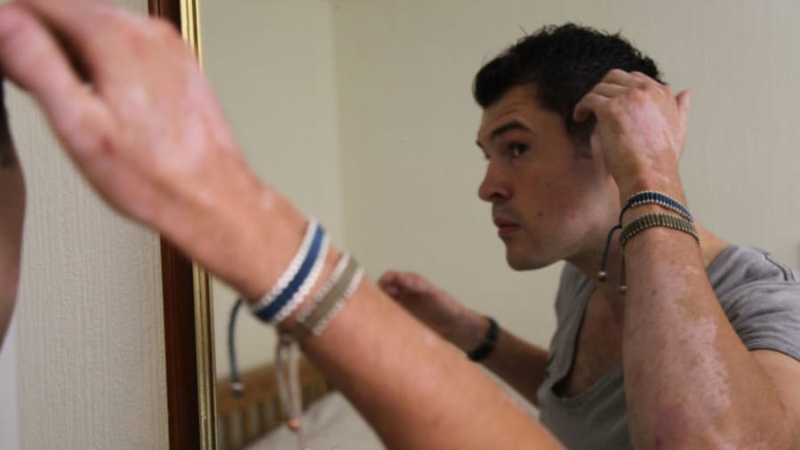 Man with vitiligo on the arms, face, and chest looking at himself in the mirror