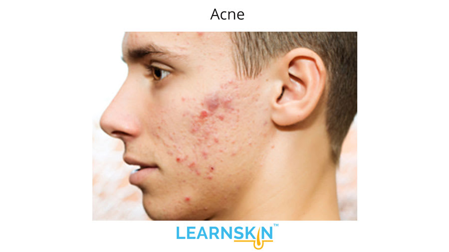 Acne Vulgaris - Learnskin