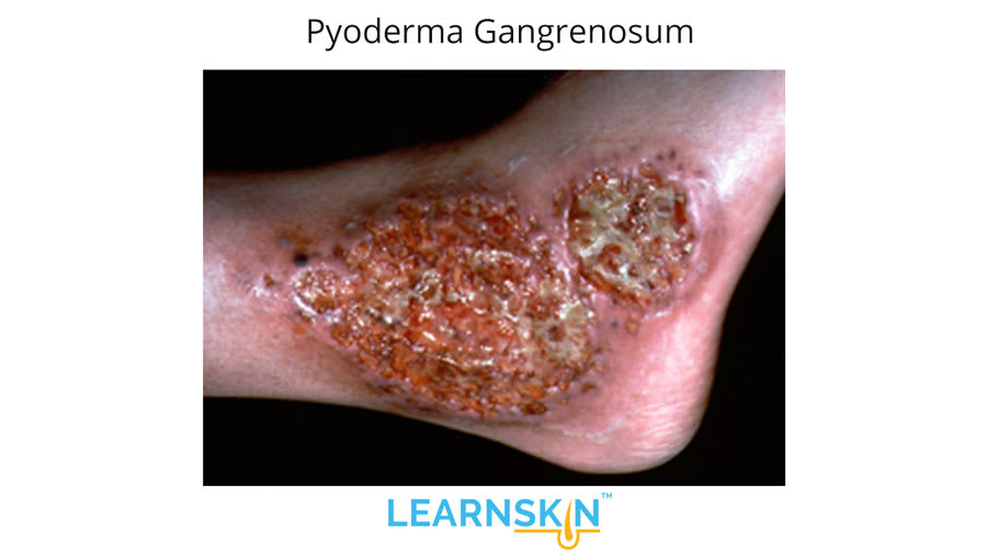 Pyoderma Gangrenosum -Learnskin