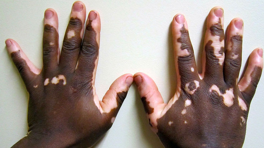 lesions scattered on the hands