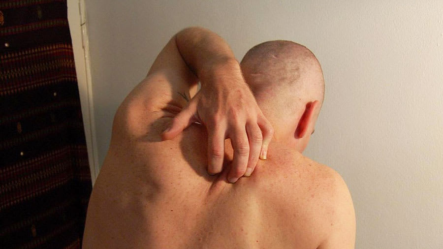 man scratching guttate psoriasis on back