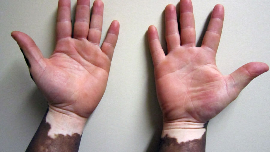 Vitiligo of the arms and hands
