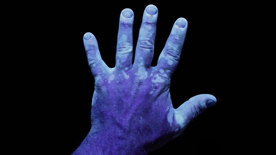 UV photography of the hand with vitiligo