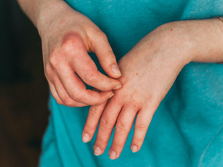 Exercising with Atopic Dermatitis (Eczema): Things To Know