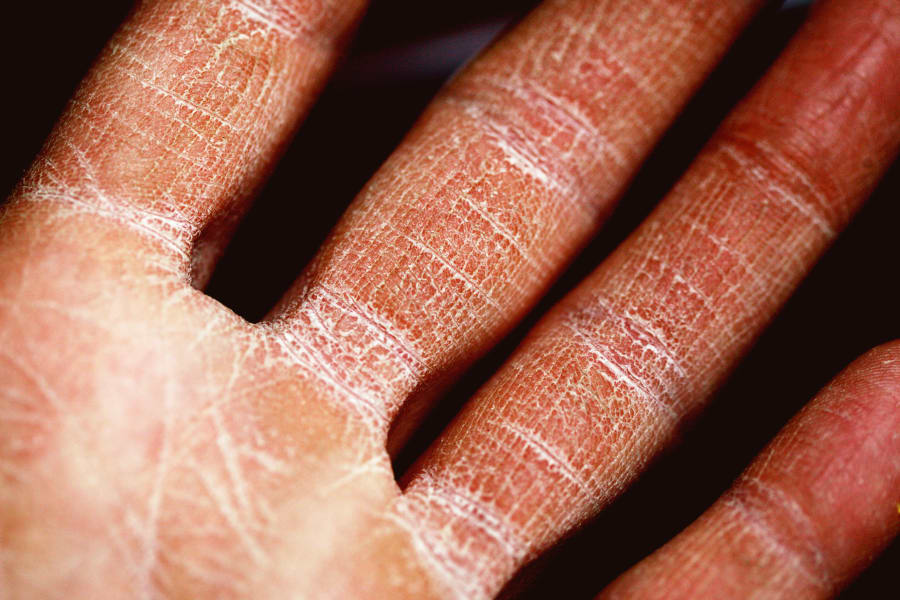 5 Differences Between Eczema and Psoriasis