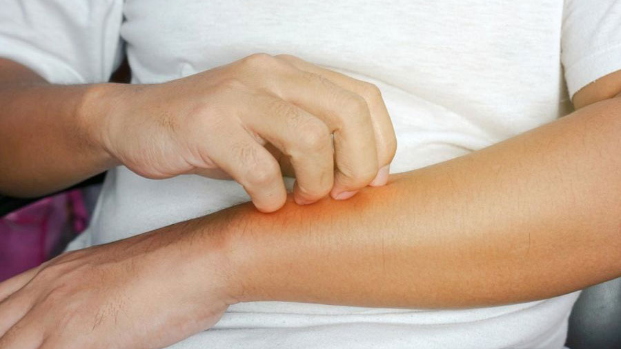 Eczema Series - 1: What Is Eczema?
