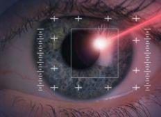 Chirurgie de l' hypermetropie et l'astigmatie