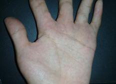 Operacion de mano