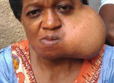 Mme Ateba marie Francoise victime d une tumeur mendibulaire