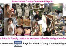 Aidez Candy dans son combat contre sa Scoliose Maligne Infantile très sévère ou cancer de la colonne vertébrale