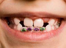 Aparato dental para cristian