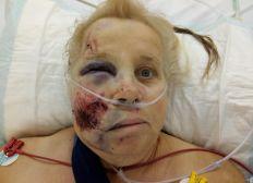 Michelle François afin de facilité son retour de l'hôpital suite a accident de voiture