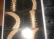 opération dorsale