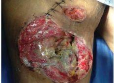 Curación avanzada de heridas movil
