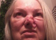 Heilung für Heide-Marie (Krebstherapie in der Praxis Sonnentor)