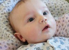 Baby Helmtherapie