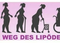 Support Kerstins lipedema operation