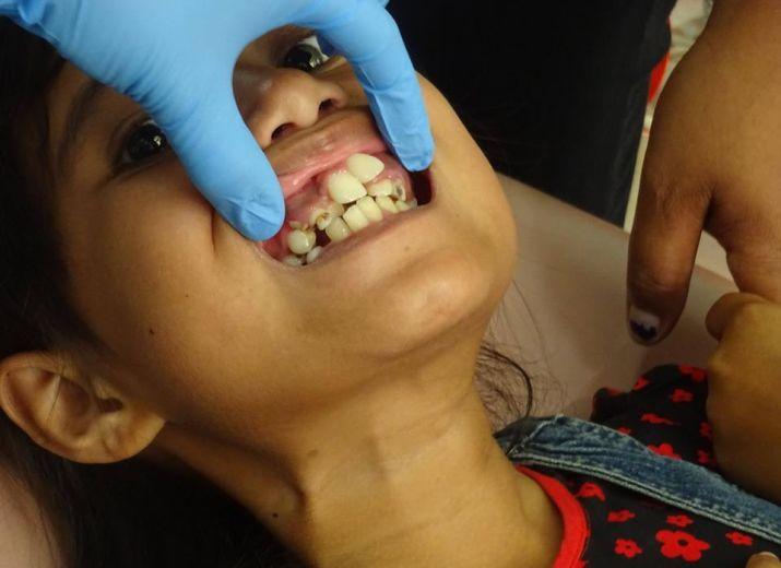 Zahnärztliches Hilfsprojekt Sumba