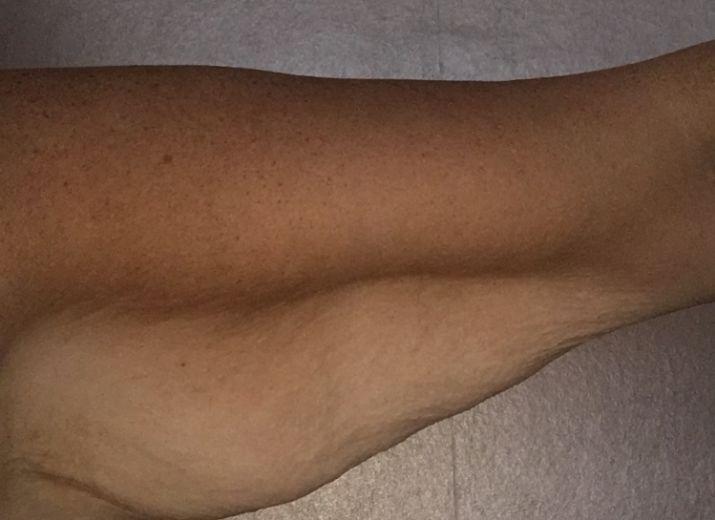 Money pot: Post Weight Loss Skin Removal Surgery - Leetchi com