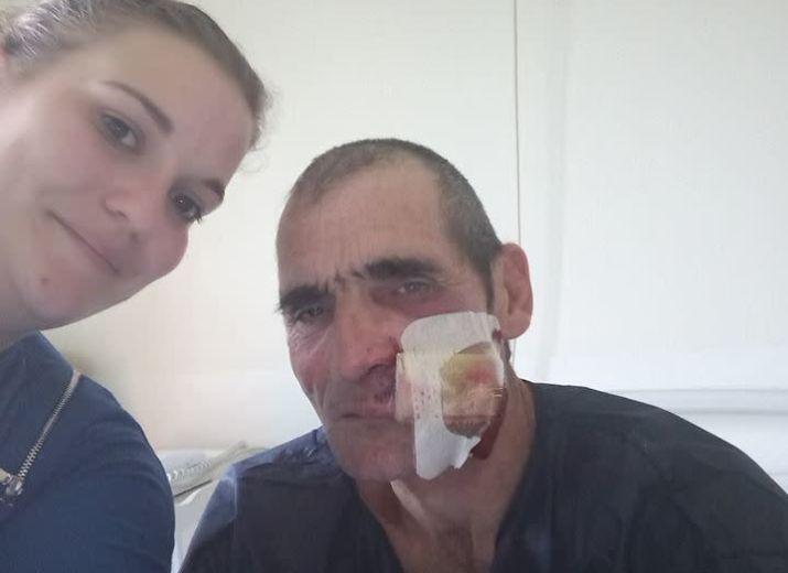Cagnotte de Solidarité avec Guy Bernier, gilet jaune blessé au visage par un flashball à Bordeaux