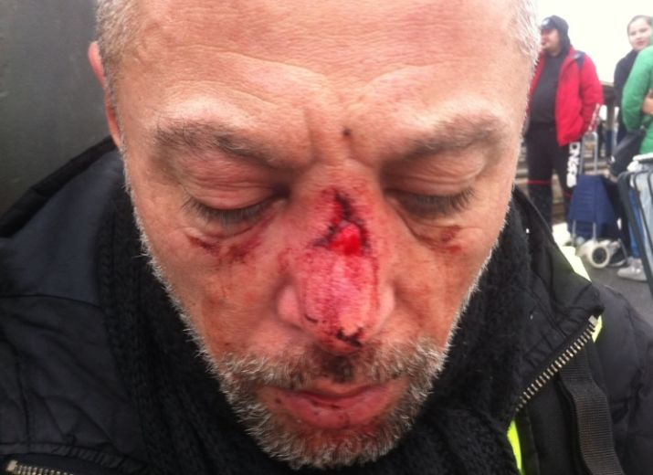 Cagnotte de Solidarité en faveur de Franck gilet jaune touché au visage par un tire de LBD 40
