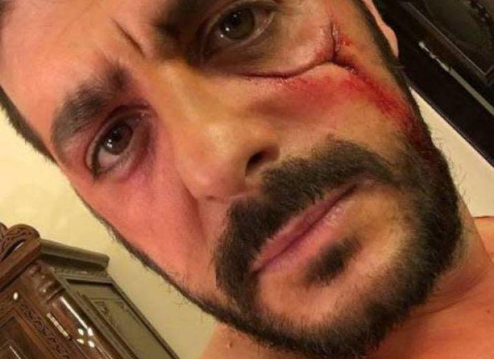 """""""GILET JAUNE"""" Soutien pour Mehdi, blessé au visage lors des manifestations de Gilet Jaune"""