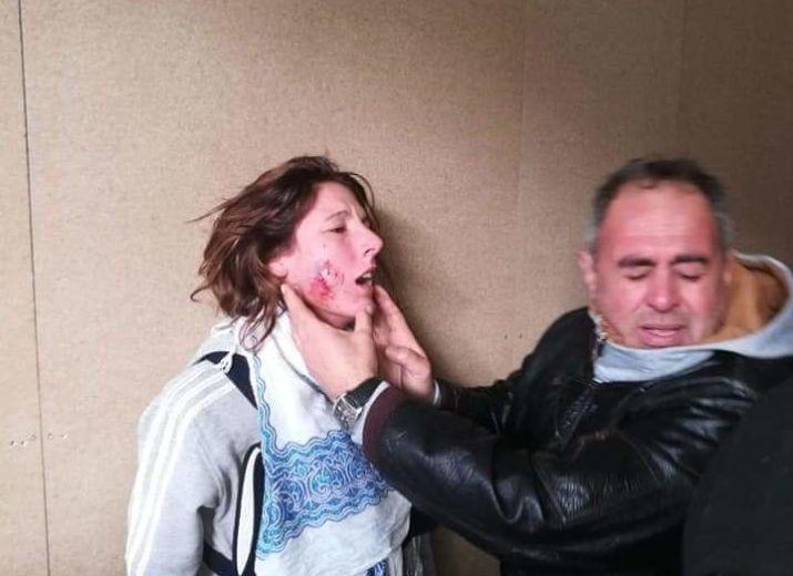 Axelle victime d'un TIR DE FLASHBALL dans le visage
