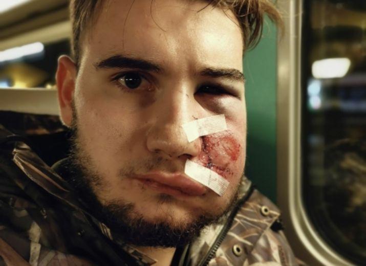 Aidons Thomas victime d'un tir de flashball gratuit durant une manifestation à PARIS le 8 Décembre 2018