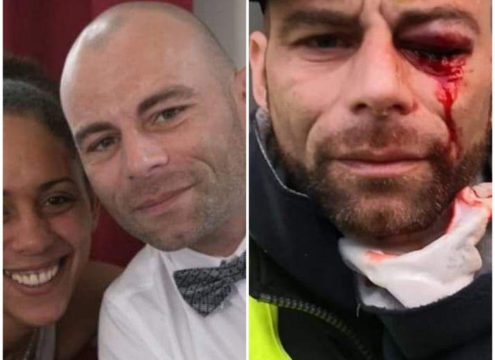 Cagnotte pour Jérôme citoyen qui a voulu nous défendre à Paris et se retrouve avec un oeil perdu aidons le à subvenir aux nombreux soins qu'il va subir #gilets jaunes