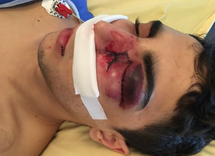 Soutien à Mehdi K. blessé à l'œil suite à un matraquage sans raison par la police le 1er décembre