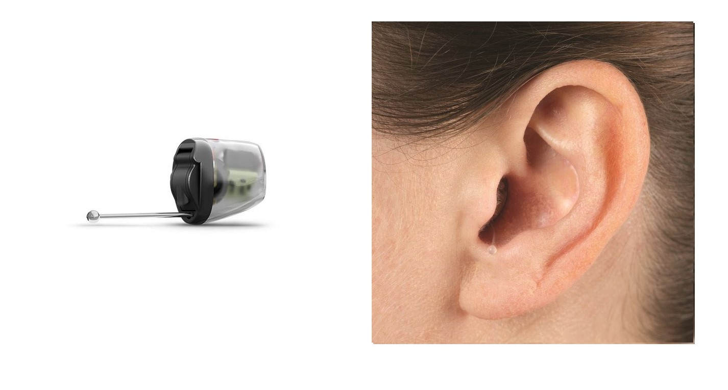In the Canal hearing aid device and in ear