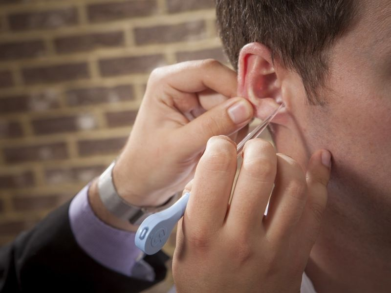 Man extracting wax out of patients ear