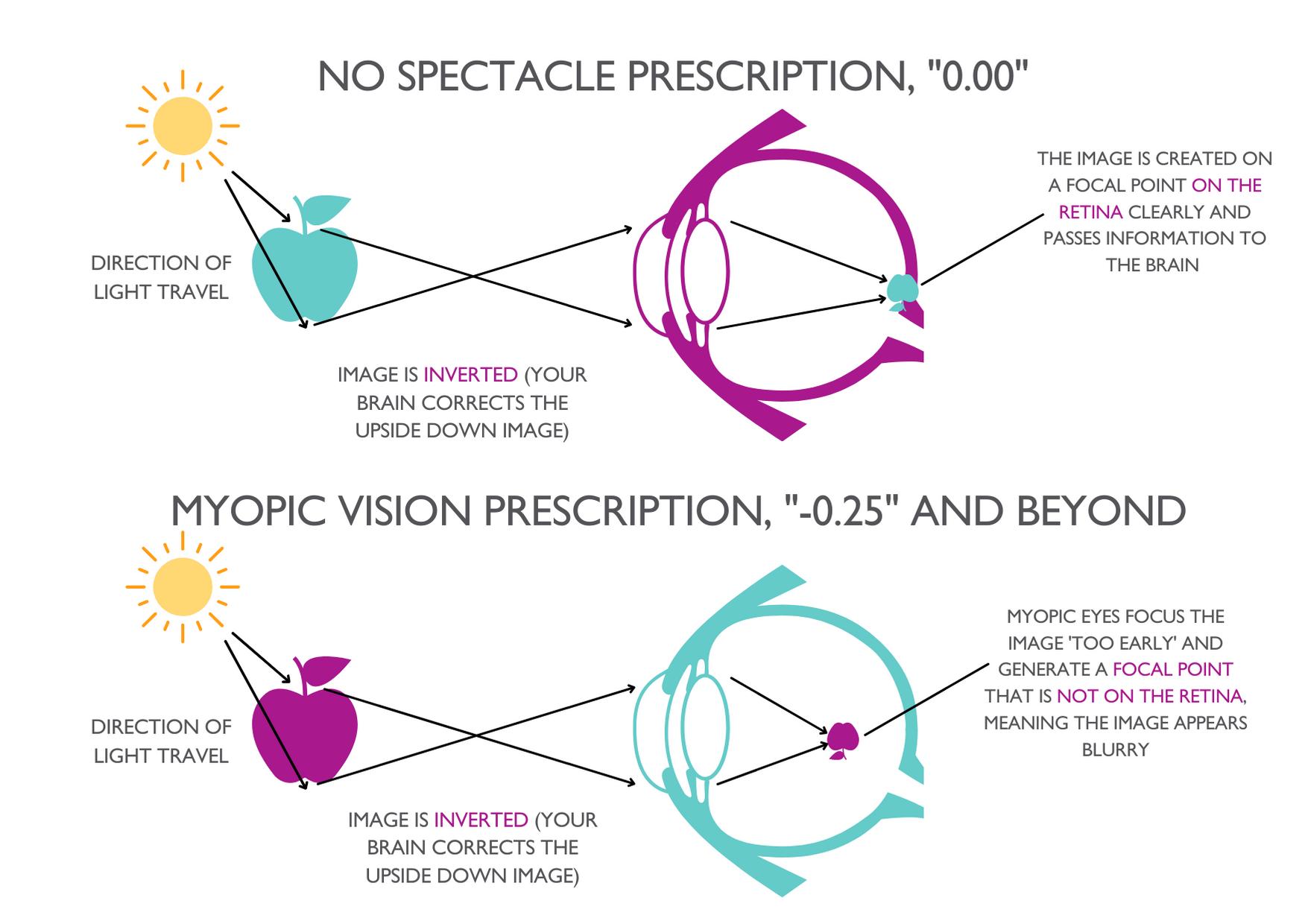 Clinical Myopia Diagram