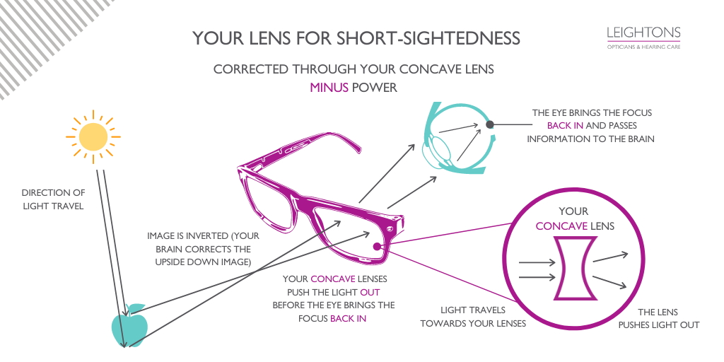 Your Lens Prescription  for Short Sightedness: A diagram