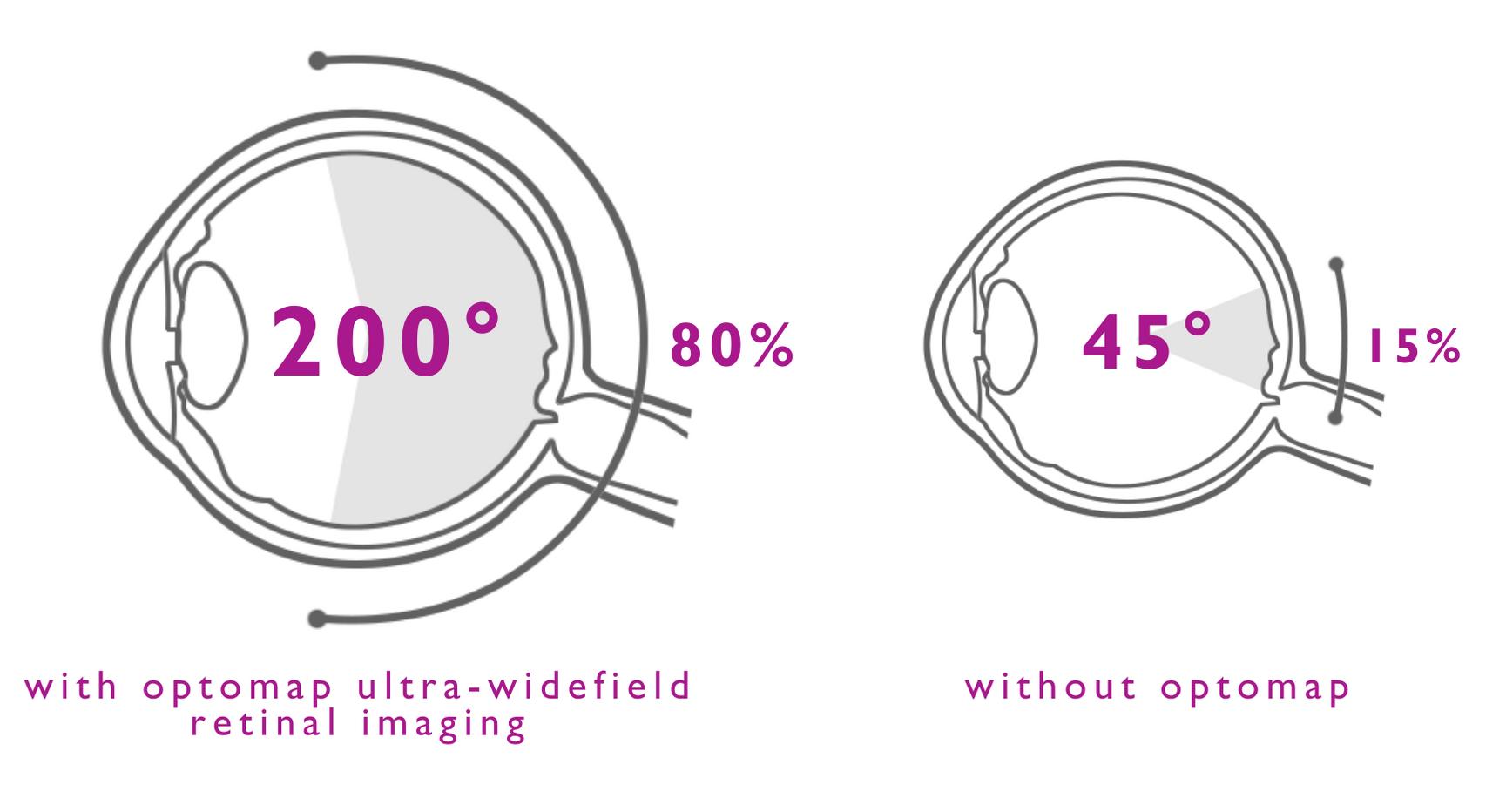 optomap with ulta-wide retinal imaging diagram