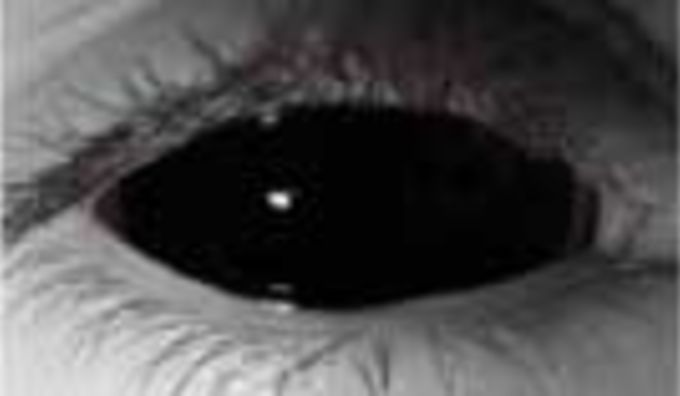 Black Sclera