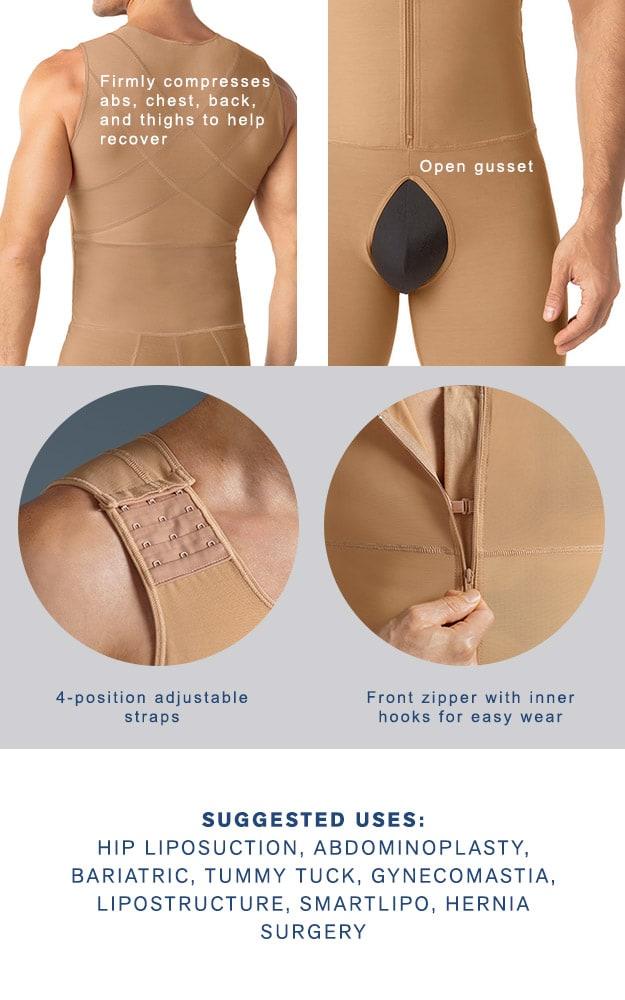 Liposuction abdominoplasty
