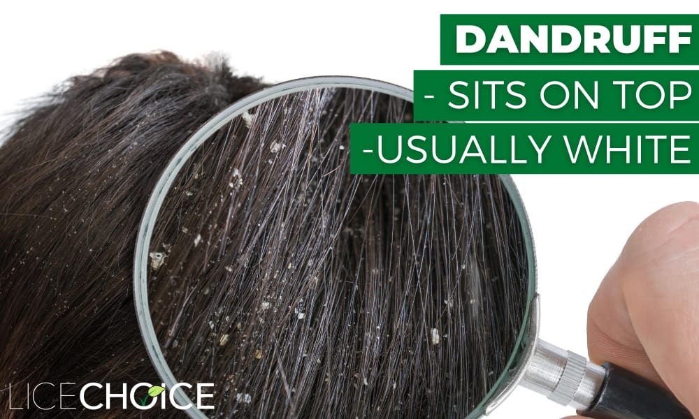 Dandruff vs. lice