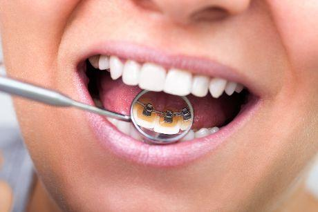 Lingual Braces - young girl smiles in lingual braces