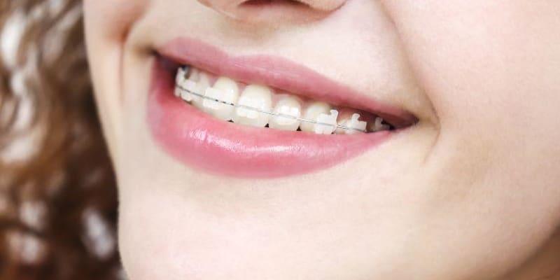 Teeth straightening exeter