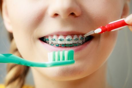 Traditional Braces - young girl with toothbrush showing braces