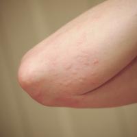 Dermatology (rashes)